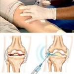 Эндопротез синовиальной жидкости для коленного сустава